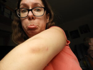 Bug bite on elbow